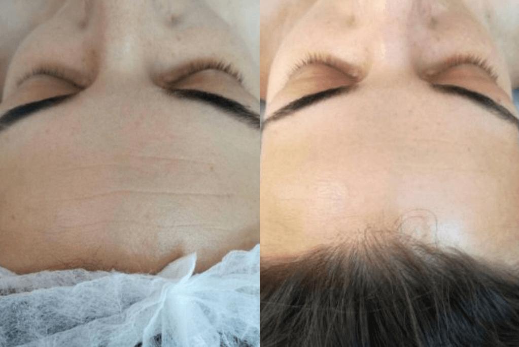 лечение морщин и заломов косметолог хмельницкий