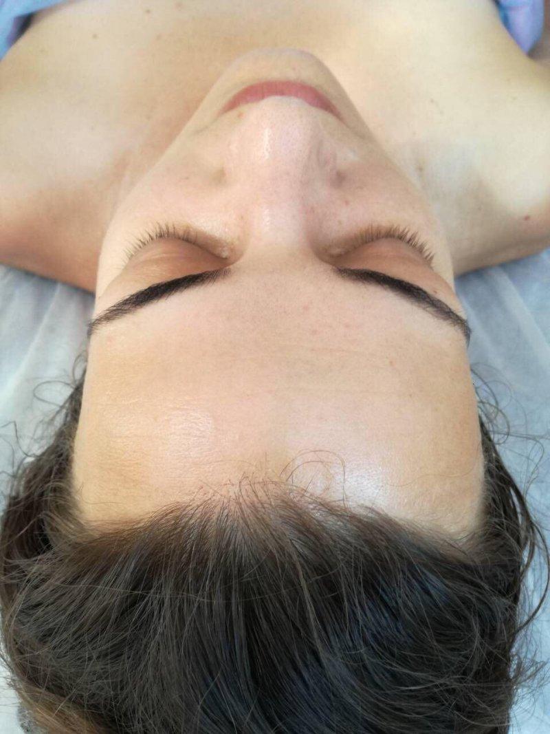 МЦ 110 ТРЕАТМЕНТ интерсивная процедура для уменшения морщин заломов масаж